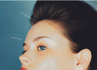 Vogue: 5 Beauty Benefits of Acupuncture