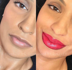 Check out these beautiful new full lips!