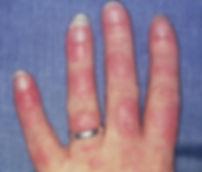 SLE hand.jpg
