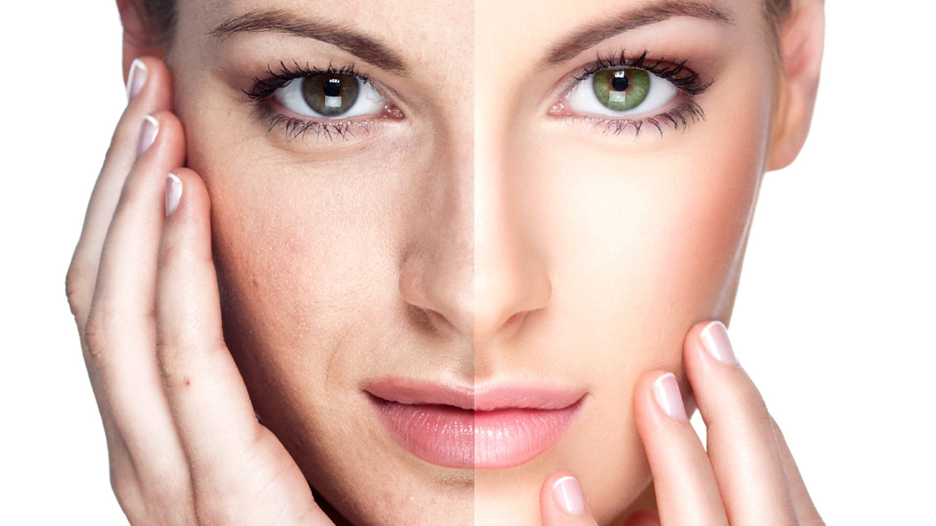 The Non Surgical Face Lift - Greenwich C