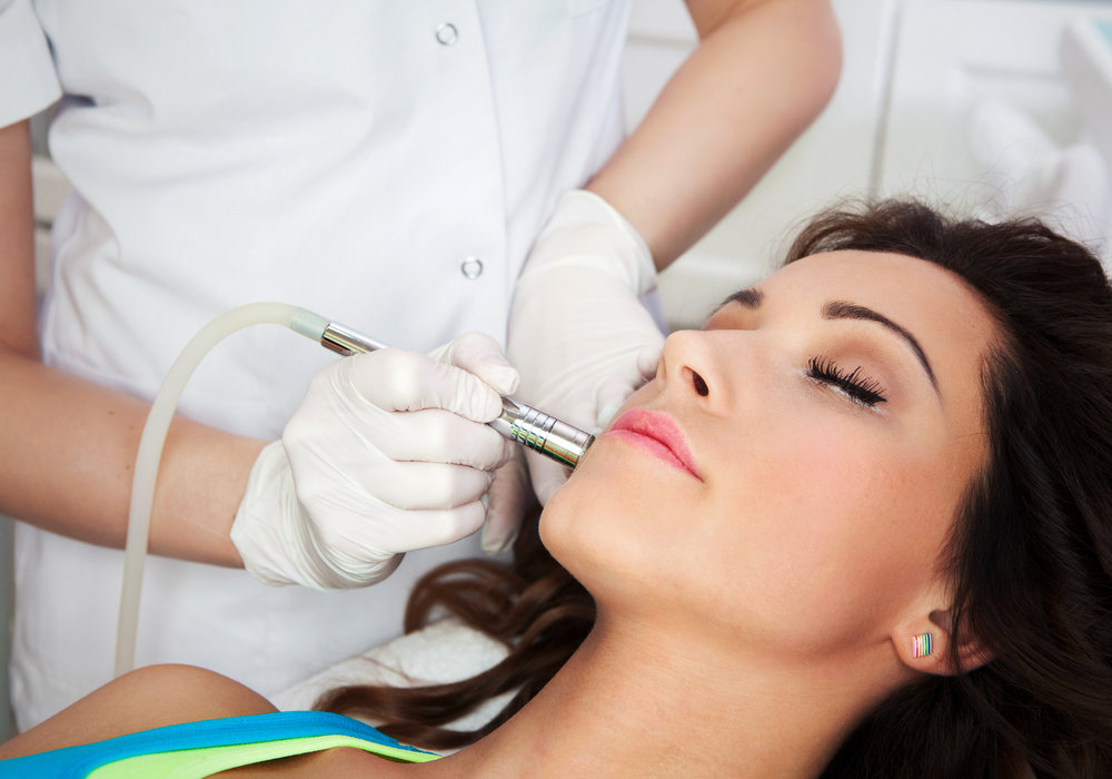 Microdermabrasion - Greenwich CT