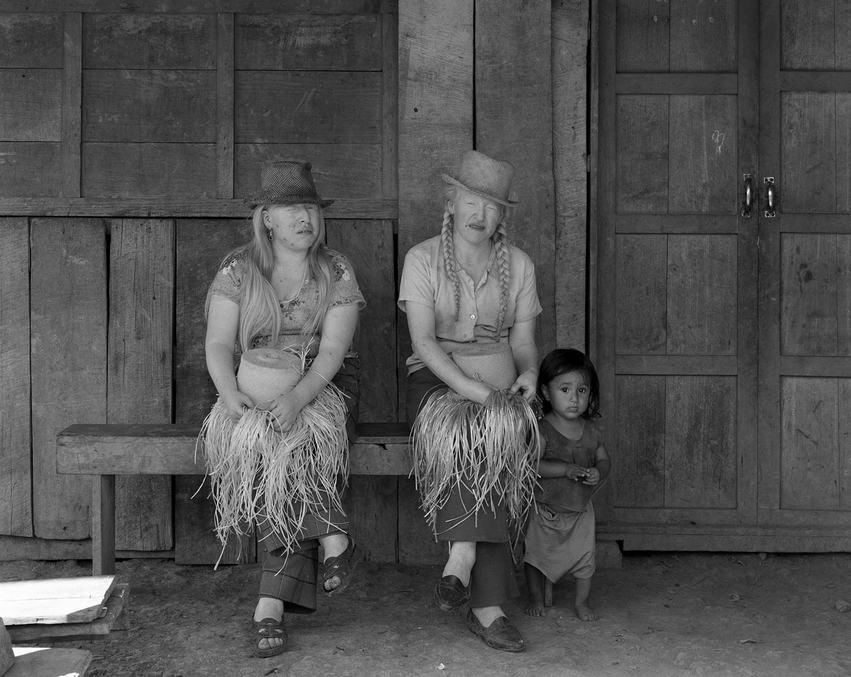 AlbinoTwins Ecuador.jpg