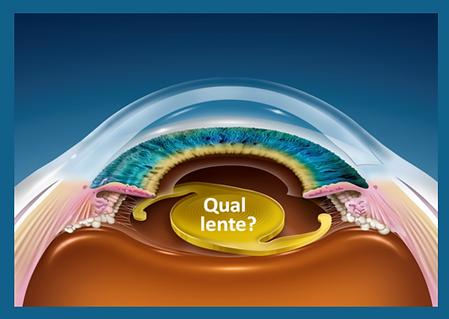 Lente Intra Ocular - Cirurgia Catarata