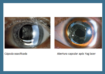 Opacidade Intra Ocular - Yag Laser - Cirurgia Catarata