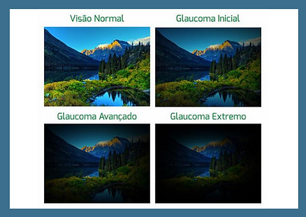 Campo Visual - Glaucoma