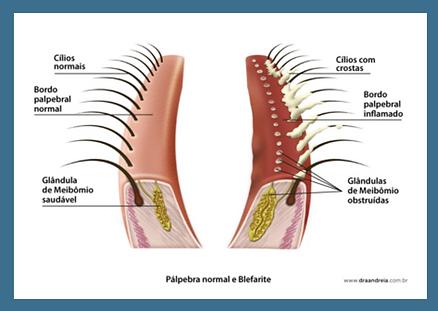 blefarite