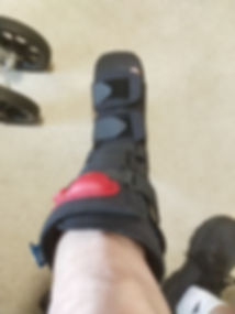 Surgery! (and a most wonderful boot)