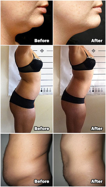 MyLipo Body Sculpting Before and After