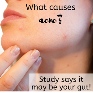 what causes acne, gut health diet, get rid of pimples, microbiome