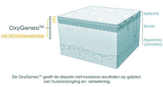 skin-diagram-dutch.jpg
