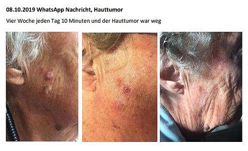 Hauttumor und Wasservitalisierer