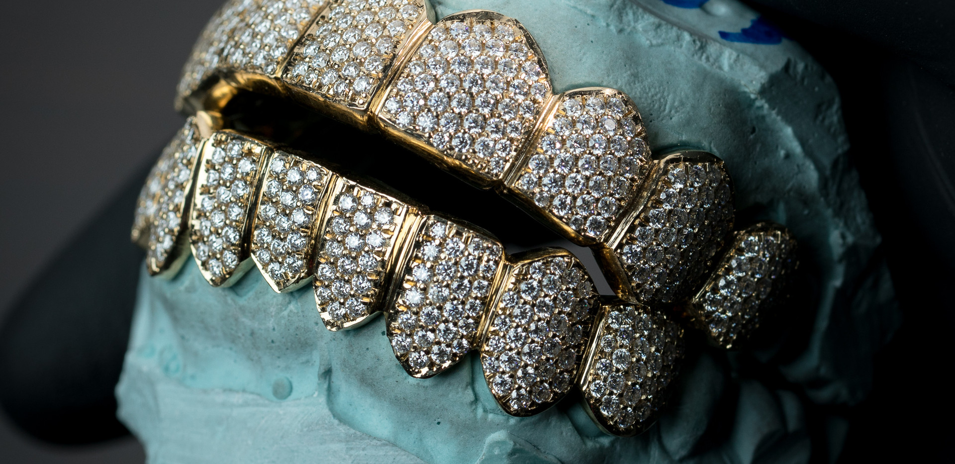 14K Gold 8 on 8 Grillz