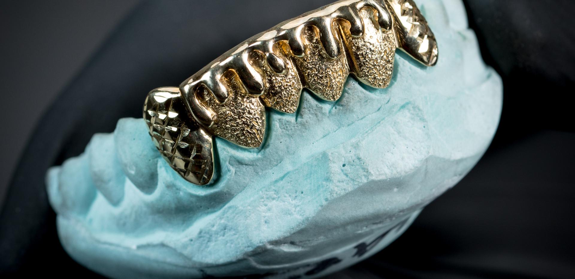 Dripping Grillz Designed By. Tim Da Jeweler