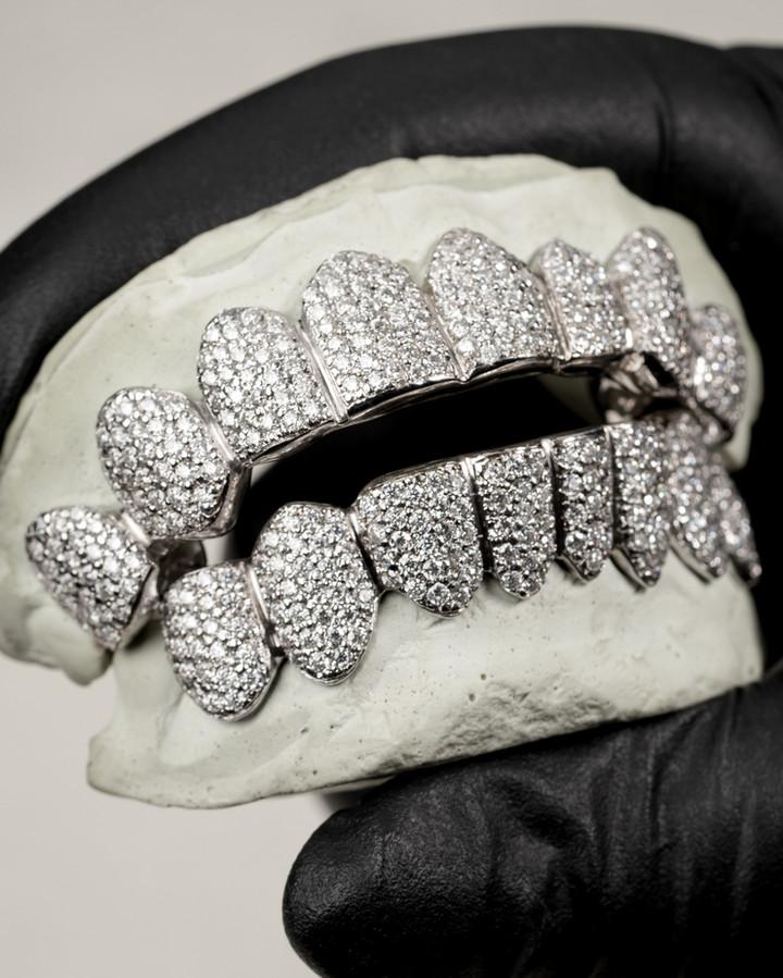 White Gold Grill Designed By. Tim Da Jeweler