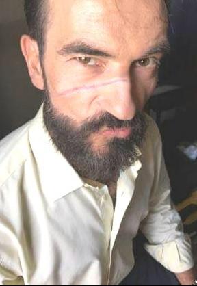 Detalle de la cicatriz que la gran maquilladora Gema Moreno realizó en el rostro de Javier Peña, Actor para este cortometraje.