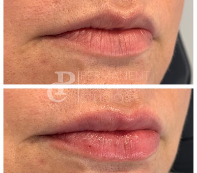 beautiful-lip-enhancement