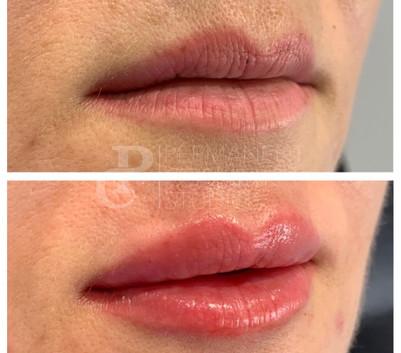 Fuller Lip filler London Clinic