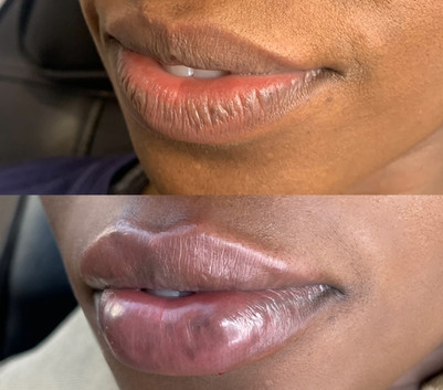 fuller-lips-with-dermal-filler