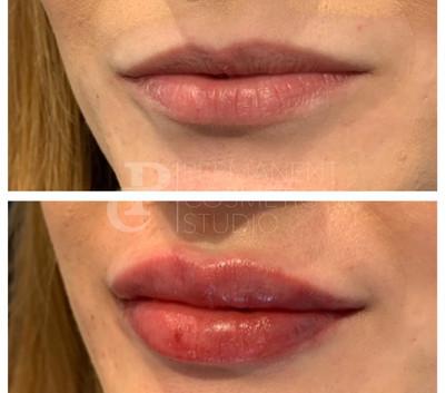 Lip fillers in Essex Clinic