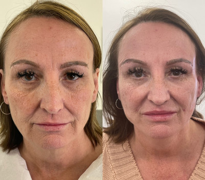 Lower face and eye lift with PDO COG Threads