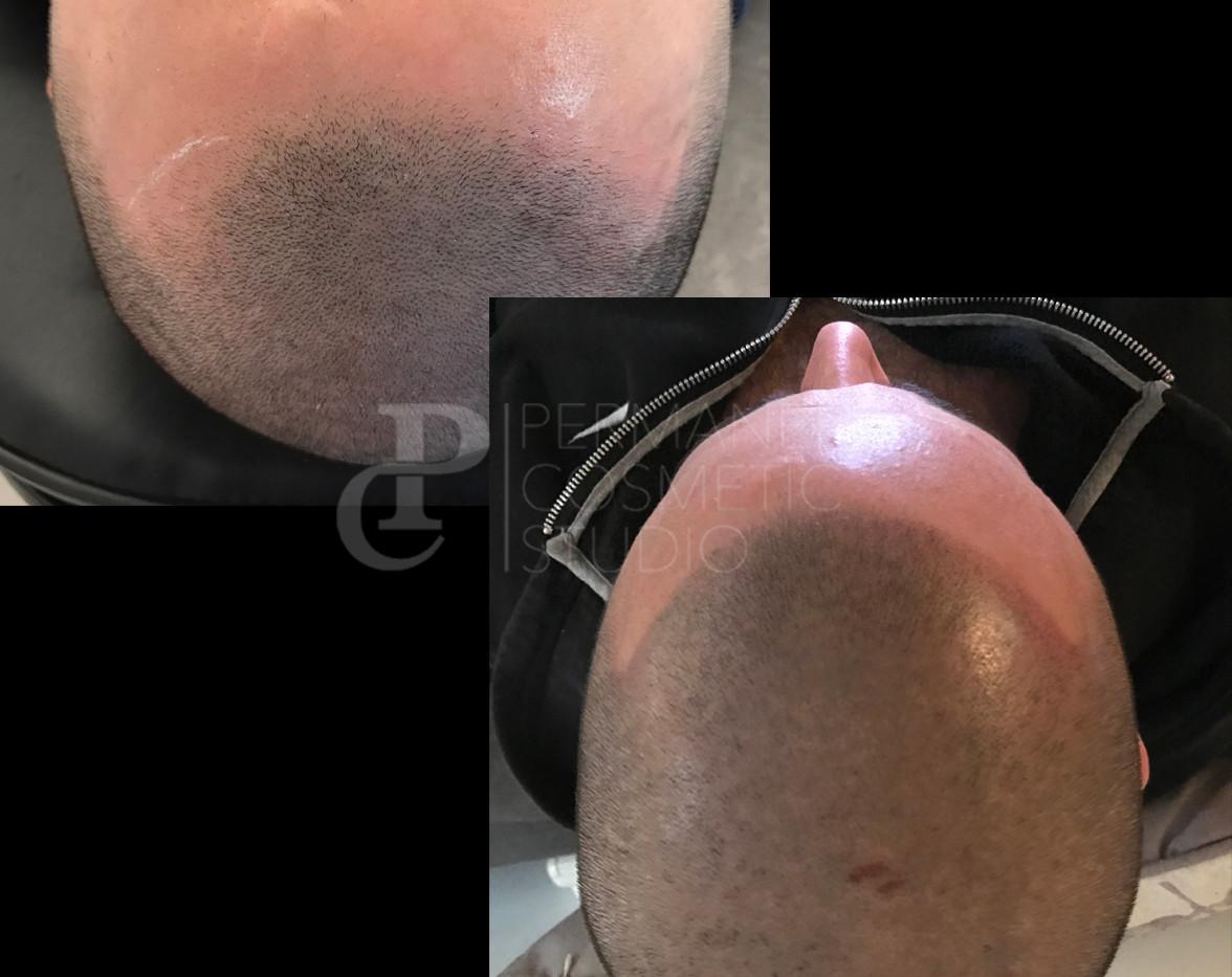 scalp3.jpg