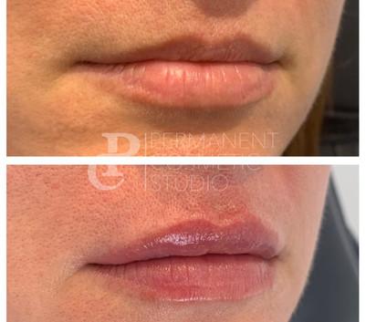 Natural-lip-filler