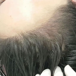 Scalp Microblading before and after