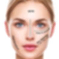 3D Face/Eye RF Skin Tightening