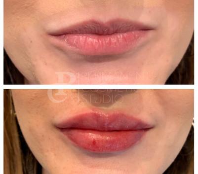 Natural-lip-fillers