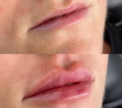 lip-filler-loughton-essex