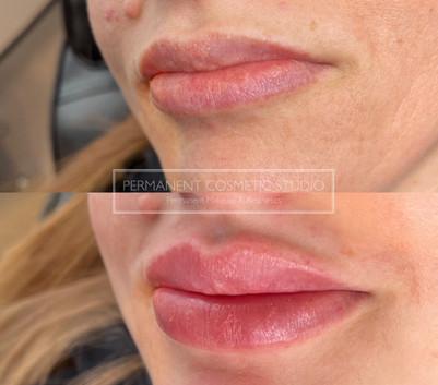 lip-filler-loughton