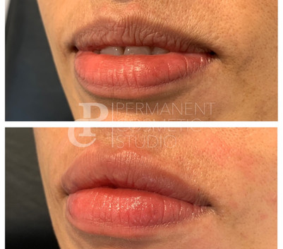 Hydrated-lip-filler
