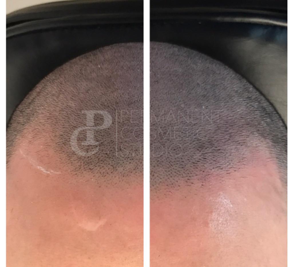scalp1.jpg