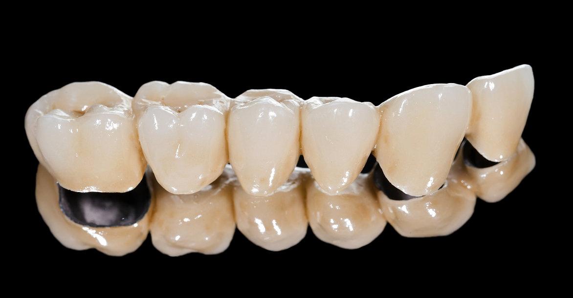 Dental Ceramic Bridge.jpg