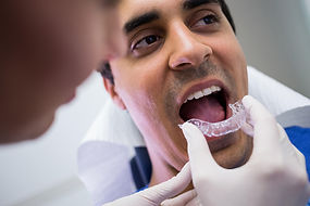 dentist-assisting-patient-wear-invisible