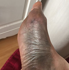 Greyness to the foot after using the Kansa wand Foot/Body