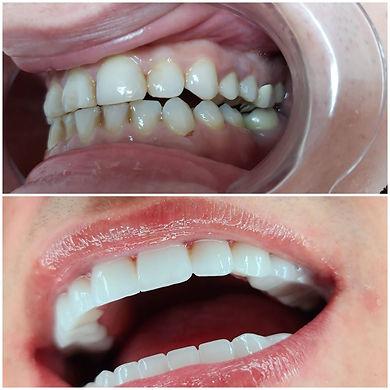 טיפולי שיניים בטורקיה 34.jpeg