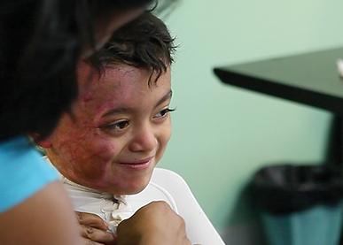 Latin America Burns in children
