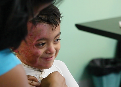 Latin America Burns in children