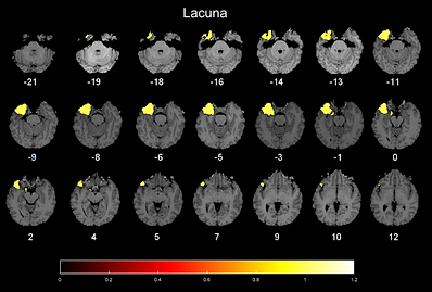 Slice view of the lacuna image overlayed onto the post-operative image