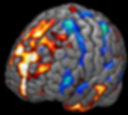 UF²C Seed Based Results Example Map (DMN). Renderized with MRicroGL