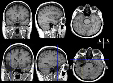 Pre- and post-operative brain MRI from a patient that underwent a resective surgery. The cross-hair on the right image highlights the lacuna