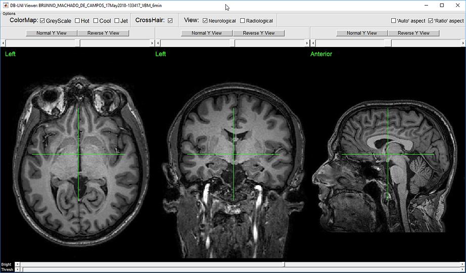 DBlni Viwer with an T1W MRI Image