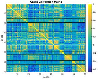 Connectivity Matrix, r-score color encoded