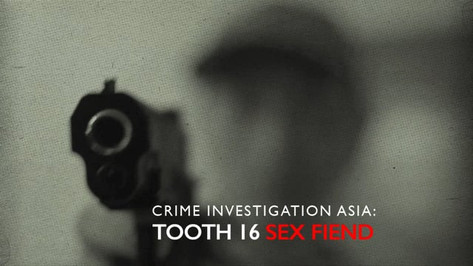 CI Asia: Tooth 16 Sex Fiend