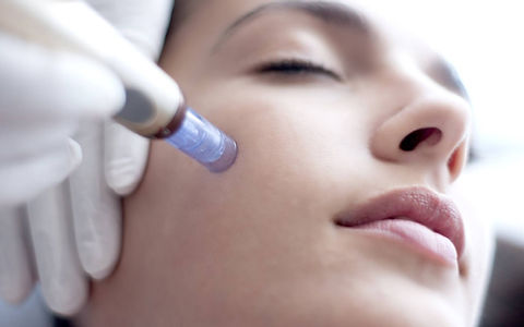 Microneedling for dark spots acne scars.jpg