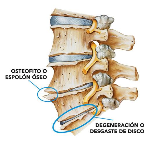 Representación gráfica de un osteofito y de un disco vertebral con desgaste degenerativo.