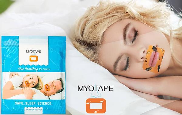 Myotape