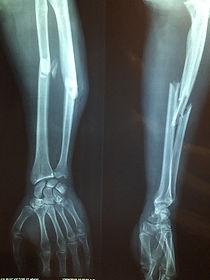 上下肢骨折圖pixabay.jpg