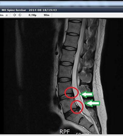 頸椎腰椎左圖.jpeg